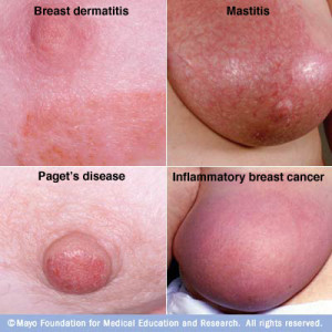 Women Breast Cancer Symptoms Rimkbcts