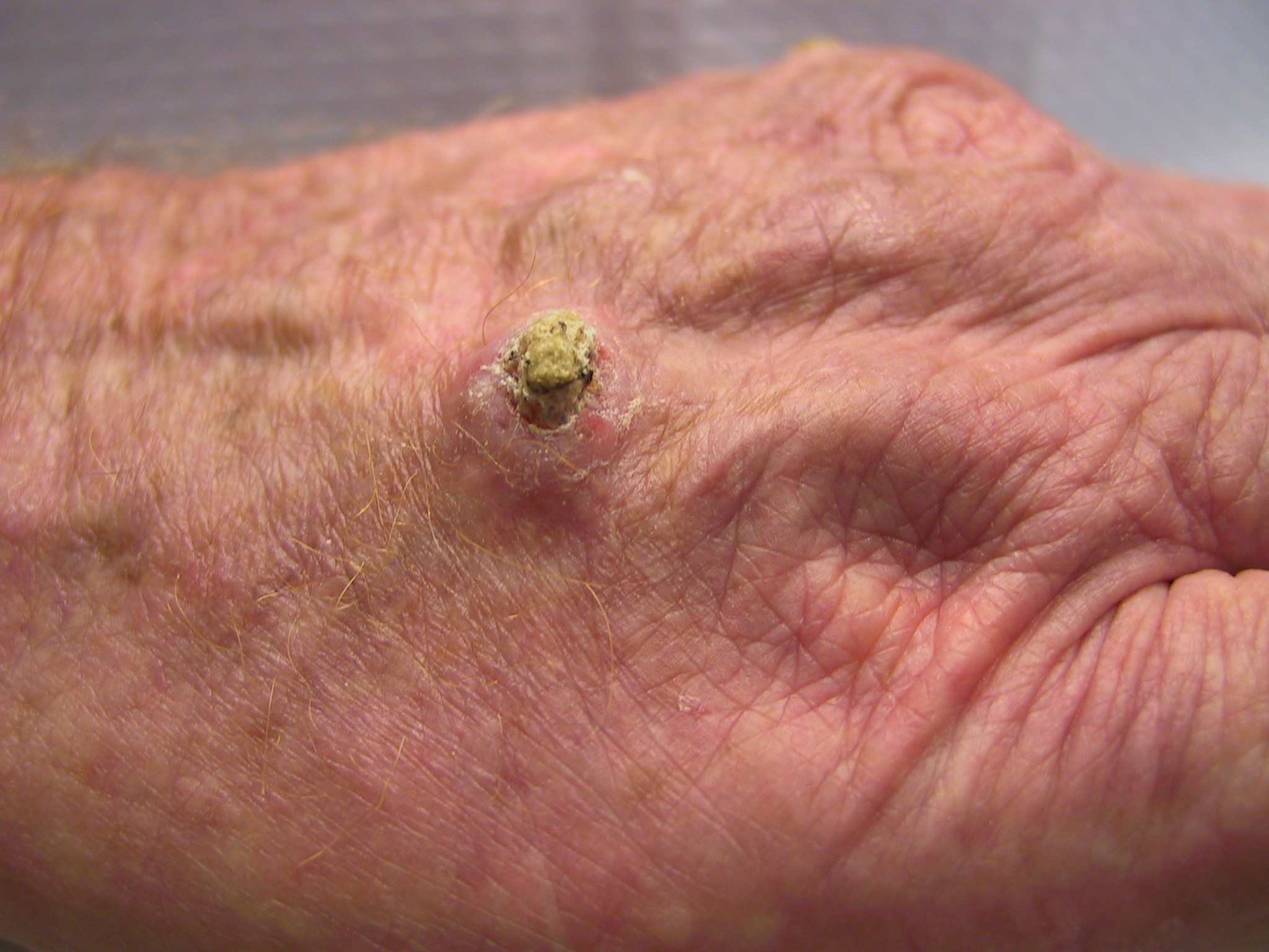 Carcinoma Skin Cancer Symptoms Pictures Wallpapers