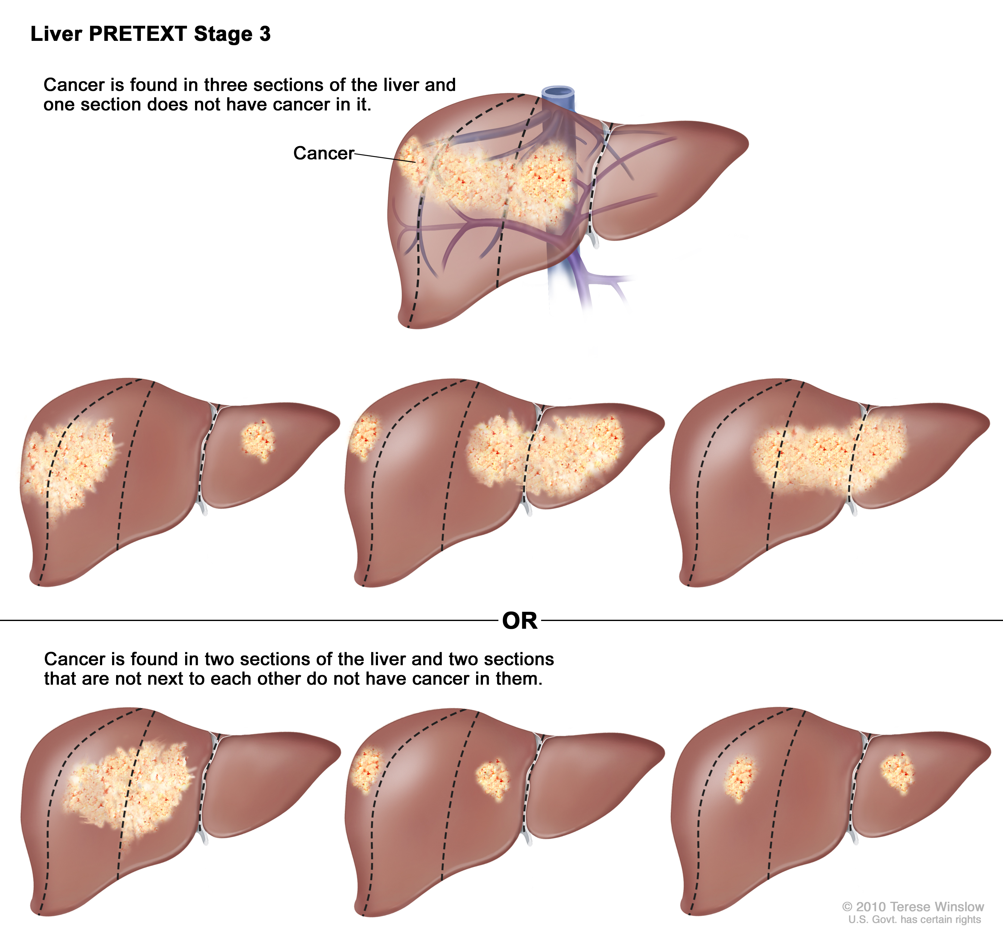 Liver Cancer Stages Pictures Wallpapers