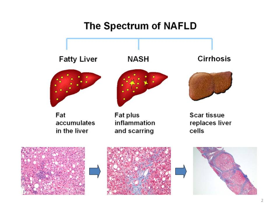 Alcoholic Fatty Liver Pictures Wallpapers