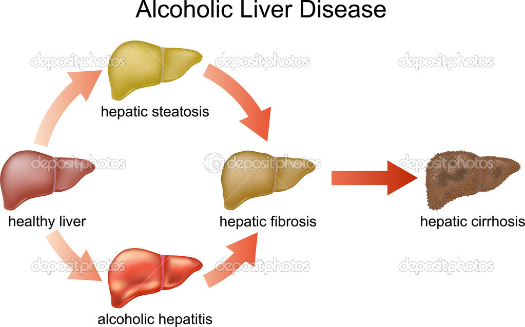 Alcoholic Liver Failure Pictures Wallpapers
