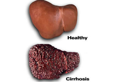 Alcoholic Liver Vs Healthy Liver Pictures Wallpapers