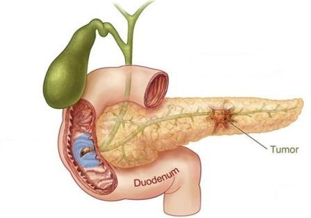 Bile Duct Cancer Pictures Wallpapers