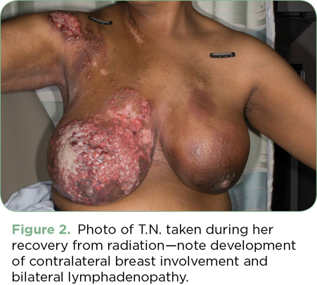 Breast Cancer Pain Bdnksbcp