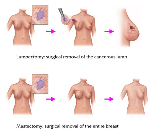 Breast Cancer Treatment Pictures Wallpapers