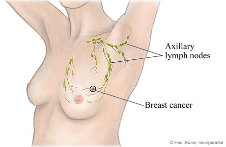 Cancer In The Lymph Nodes Pictures Wallpapers