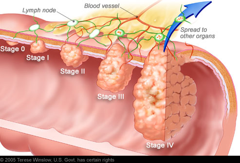 Cancer Lymph Nodes Pictures Wallpapers