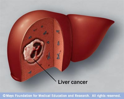Cancer Of Liver Symptoms Pictures Wallpapers
