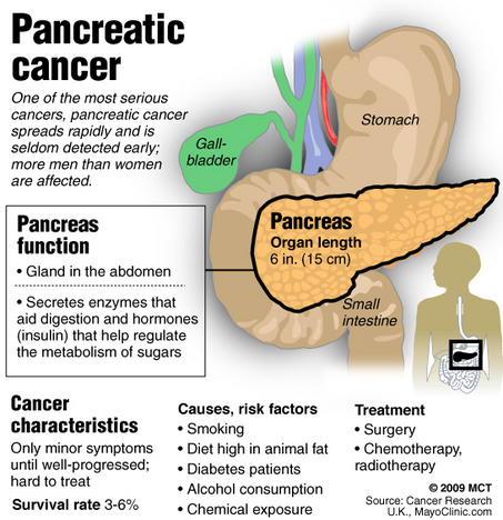 Cancer Of The Pancreas Kwcrxot