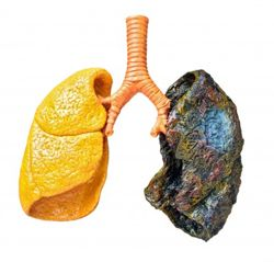 Cancer Pulmonar Pictures Wallpapers