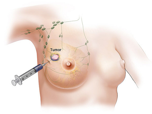 Causes Of Breast Cancer Pictures Wallpapers
