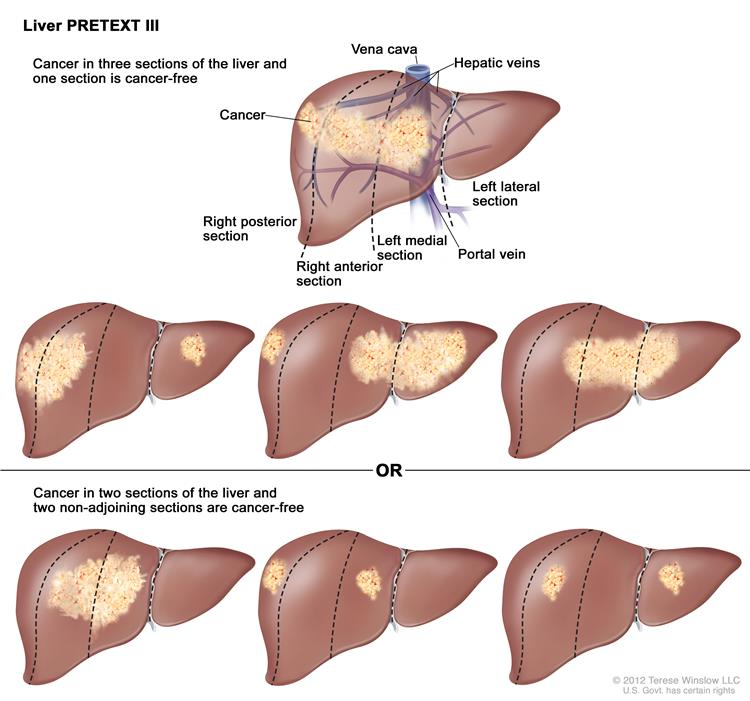 Causes Of Liver Cancer Symptoms Liver Cancer Stages Of Liver Pictures Wallpapers