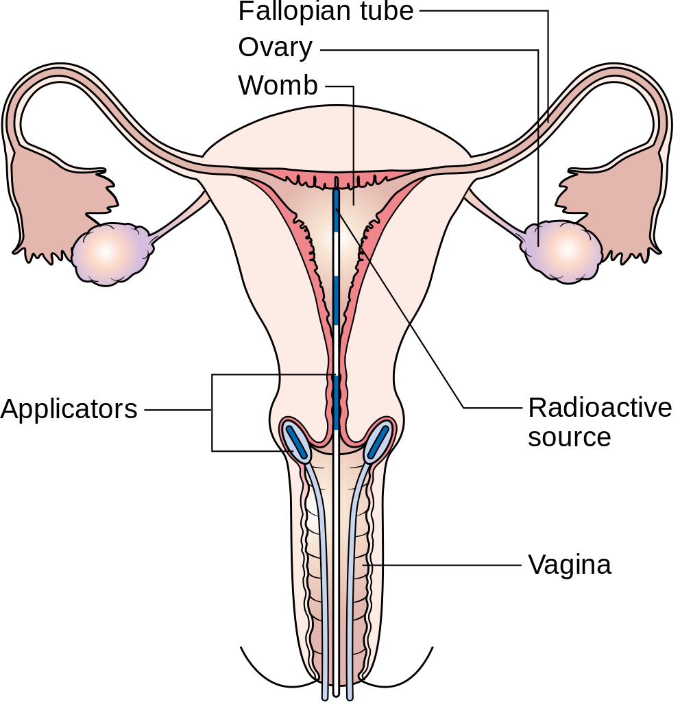 Cervix Cancer Pictures Wallpapers