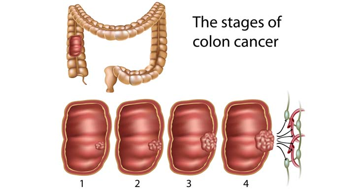 Colon Cancer Definition Pictures Wallpapers