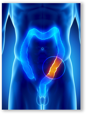 Colon Cancer Symptoms In Men Pictures Wallpapers