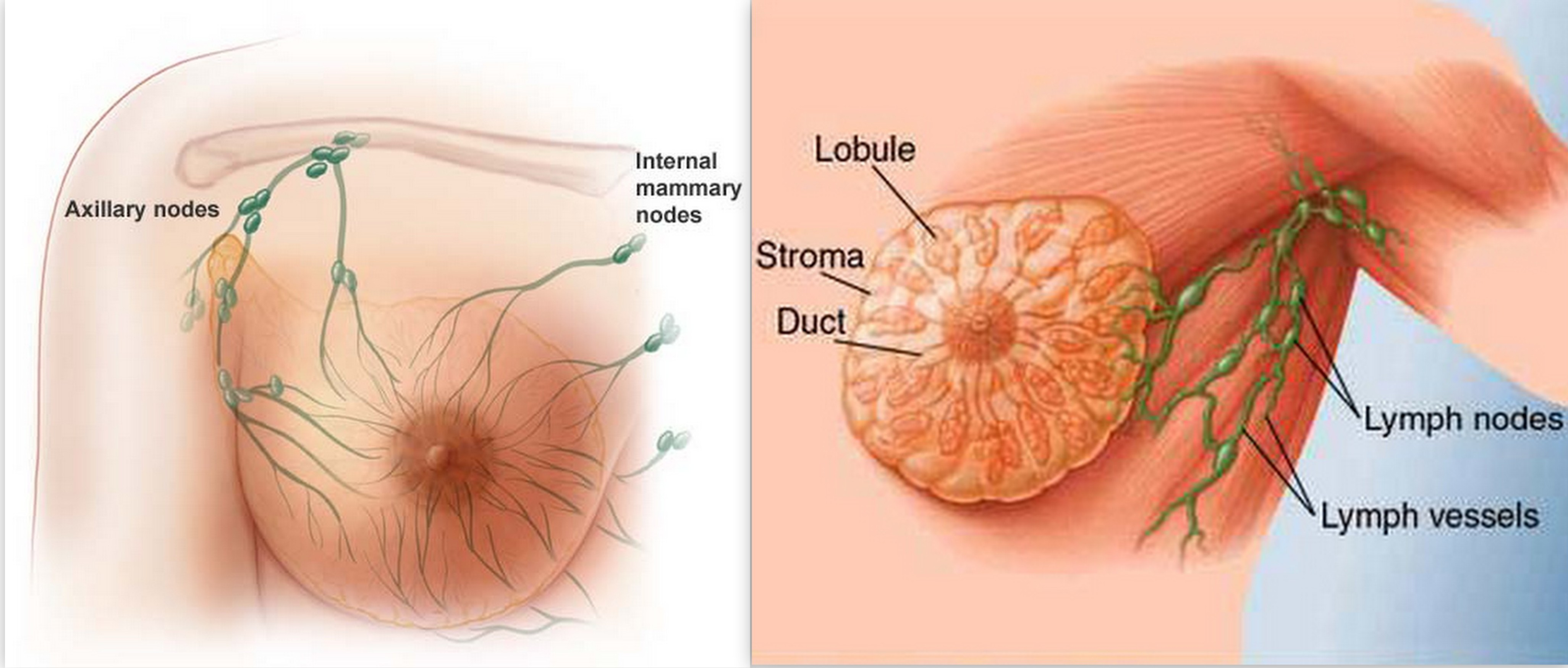 What Are Symptoms Of Breast Cancer In Men Pictures Wallpapers