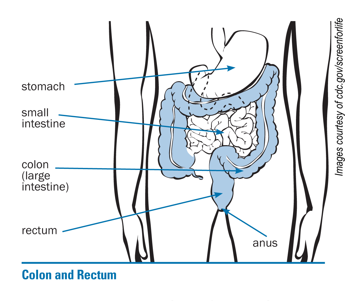 Facts About Colon Cancer Pictures Wallpapers