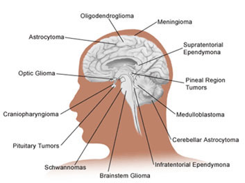 Glioma Brain Cancer Pictures Wallpapers