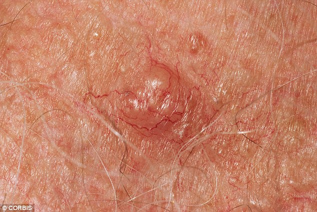 How Common Is Skin Cancer In The Uk Pictures Wallpapers