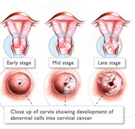 How Do You Get Cervical Cancer Pictures Wallpapers