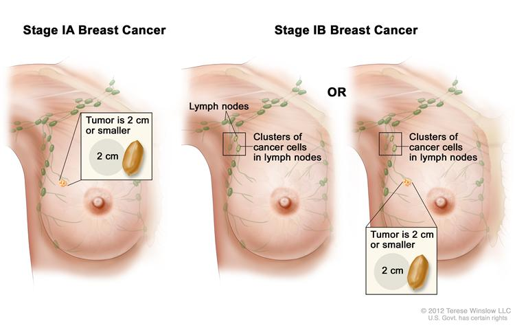 Image Of Breast Cancer Pictures Wallpapers