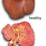 Liver Cancer Secondary Pictures Wallpapers