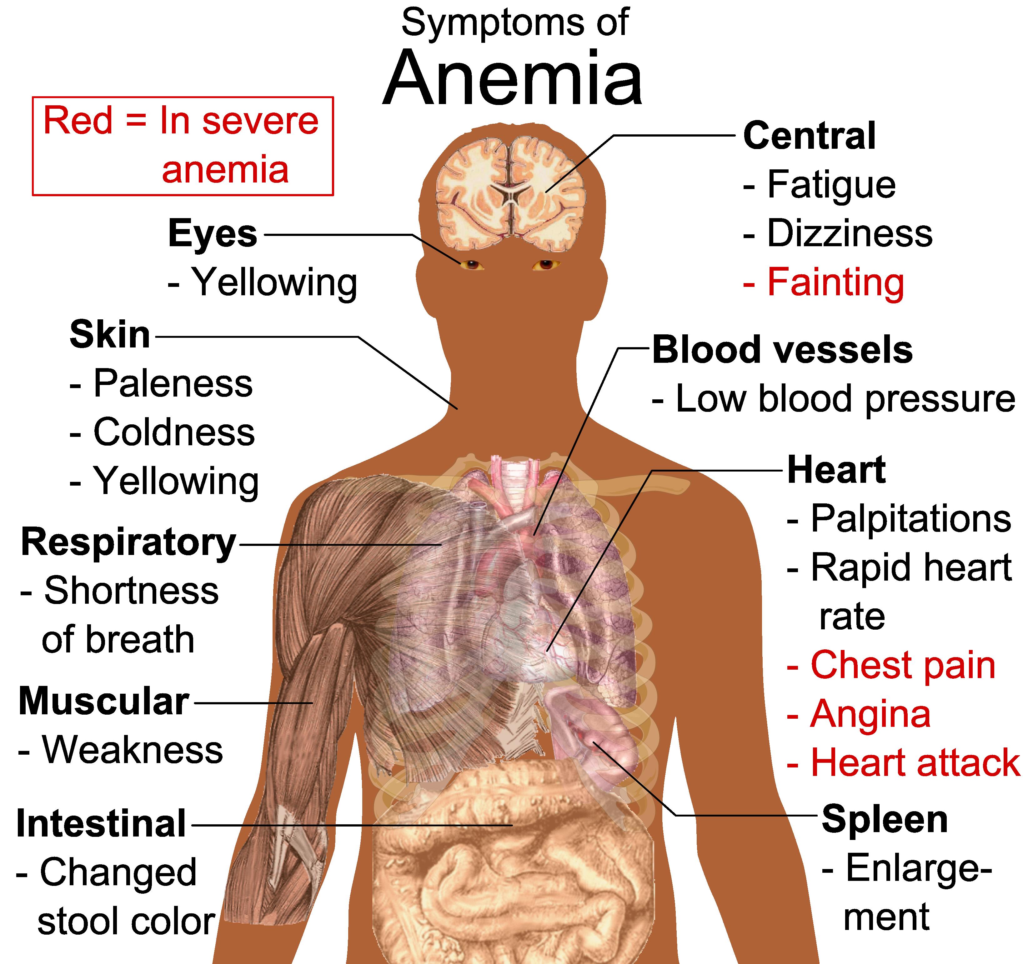 Синдром хронической усталости схемы лечения