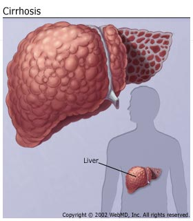 Location Of Liver In Body Healthy Liver And Cancer Pictures Wallpapers