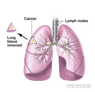 Lung Cancer Symptoms Webmd Pictures Wallpapers