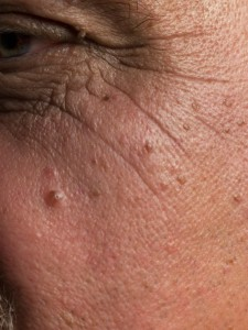 Photos Of Skin Cancer Moles Pictures Wallpapers