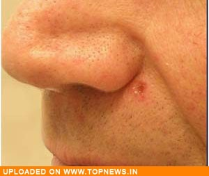 Picture Of Skin Cancer On Face Pictures Wallpapers
