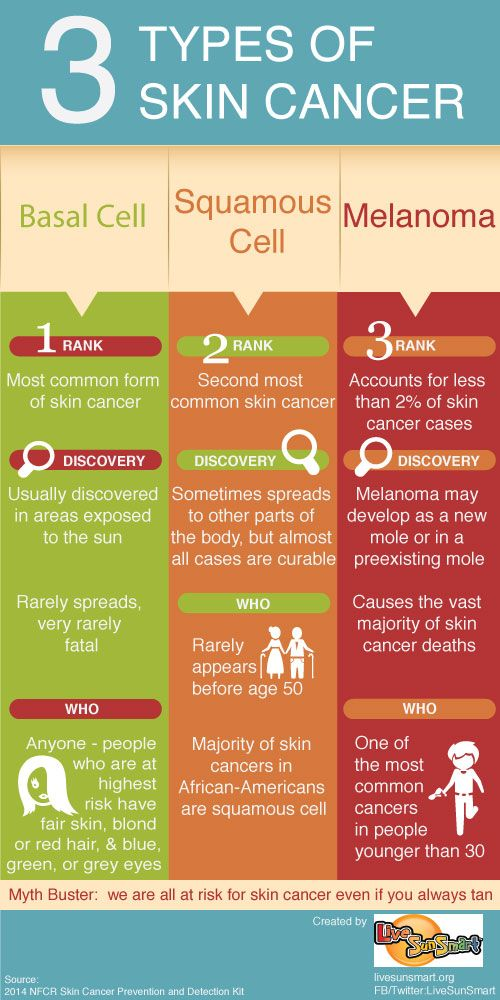 Pictures Of Different Skin Cancers Pictures Wallpapers