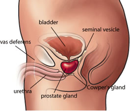 Prostate Cancer Pictures Wallpapers