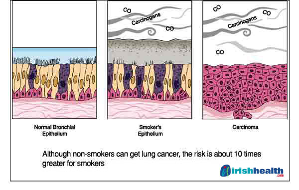 Signs Of Lung Cancer Pictures Wallpapers