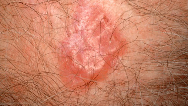 Skin Cancer Symptoms Pictures Pictures Wallpapers