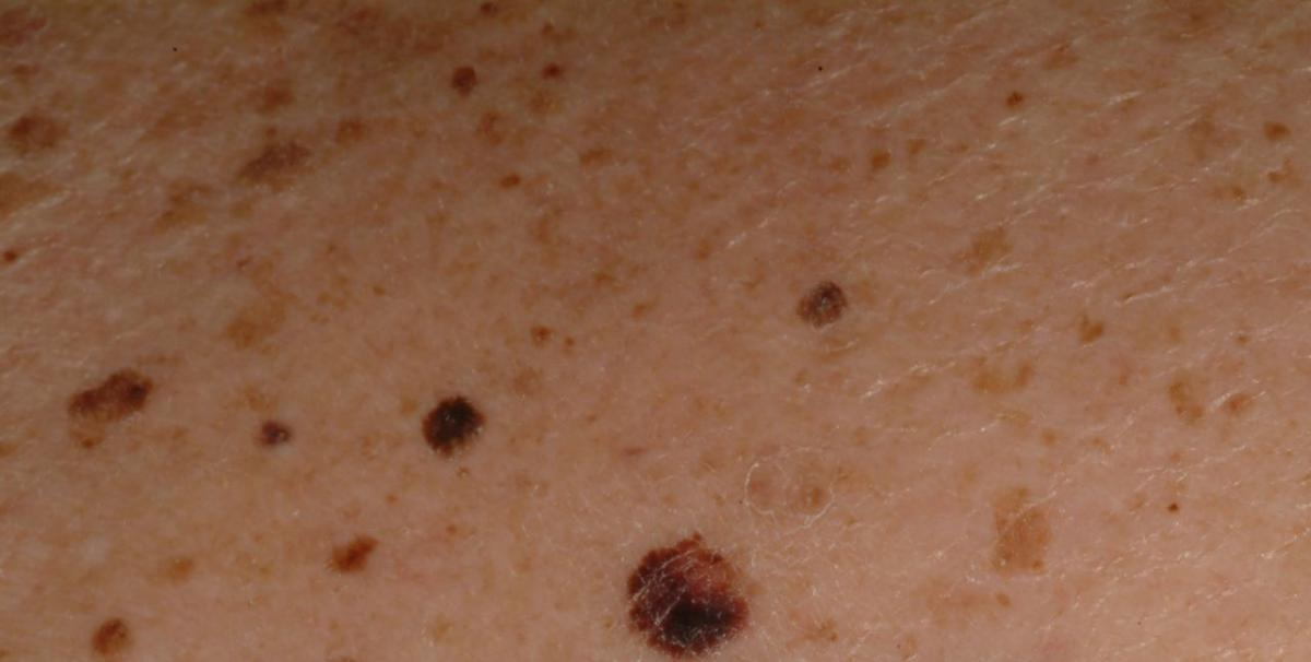 Skin Moles And Cancer Pictures Wallpapers