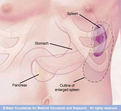 Spleen Cancer Pictures Wallpapers