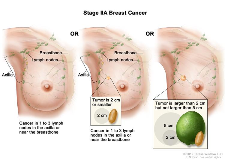 Stages Of Breast Cancer Pictures Wallpapers