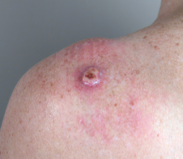 Symptom Of Skin Cancer | MedicineBTG.com