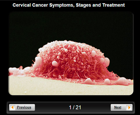 Symptoms Cervical Cancer Pictures Wallpapers