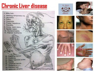 Symptoms Of Liver Cancer In Women Pictures Wallpapers