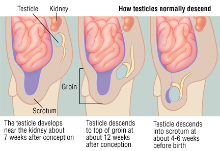 Testicular Cancer Symptoms And Signs Pictures Wallpapers