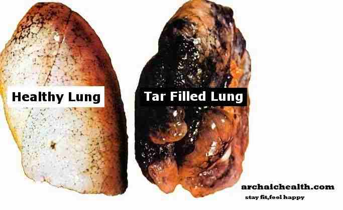 Lung Cancer Symptoms Men Pictures Wallpapers