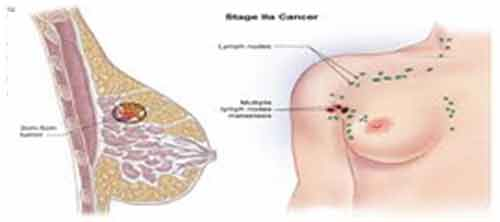 Types Of Breast Cancer Pictures Wallpapers