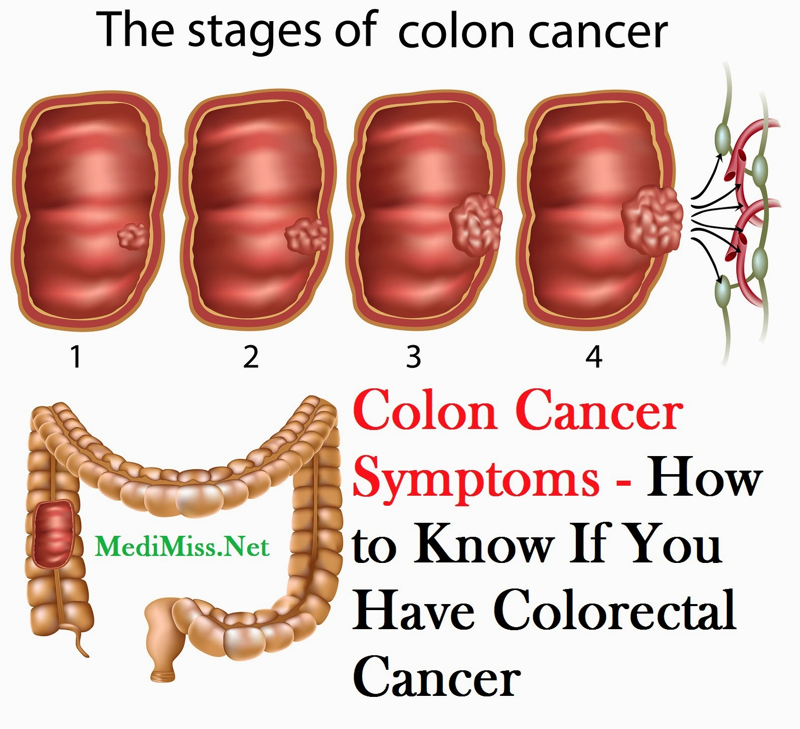 What Are The Symptoms Colon Cancer Pictures Wallpapers
