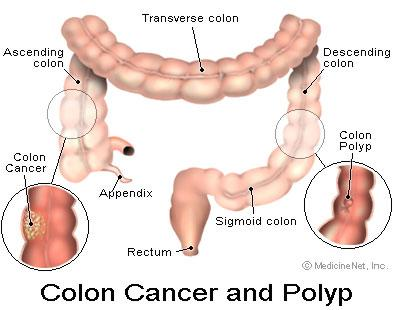 What Is Colon Cancer Pictures Wallpapers