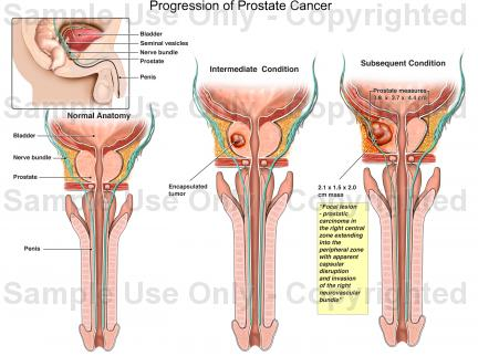 Www Prostate Cancer Com Pictures Wallpapers