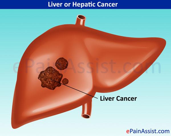 Signs And Symptoms Of Liver Cancer Pictures Wallpapers