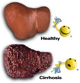 Early Symptoms Of Liver Disease Pictures Wallpapers