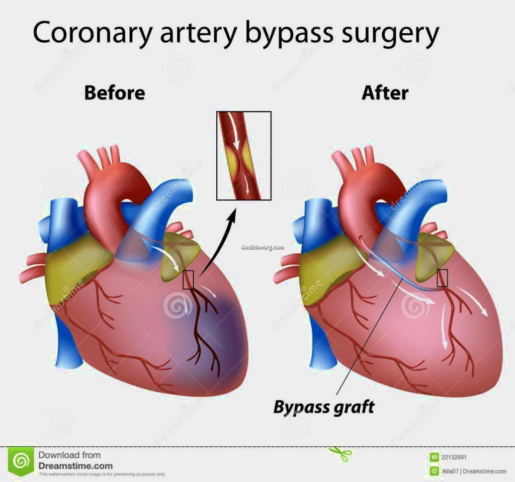 Heart Bypass Surgery Pictures Wallpapers